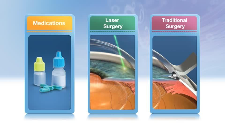 Treatments for Open-Angle Glaucoma | BrightFocus Foundation