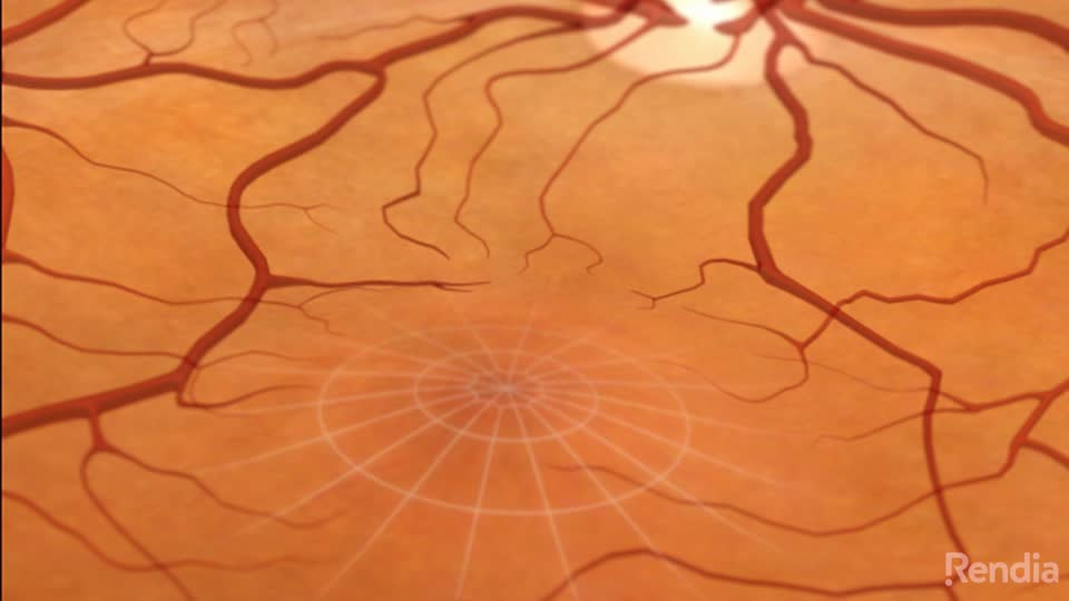 is macular oedema the same as macular degeneration